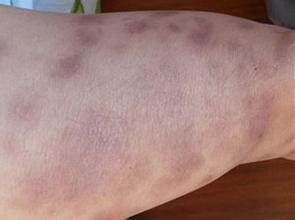 脓疱型牛皮癣的治疗注意事项有哪些